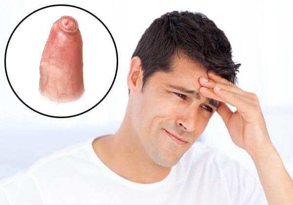 bệnh hẹp bao quy đầu là gì