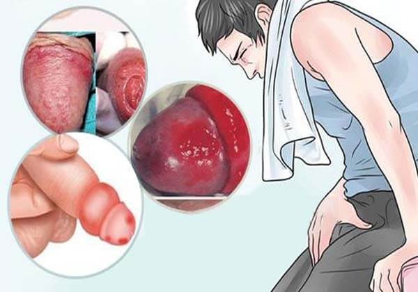 bệnh viêm nhiễm nam khoa là gì
