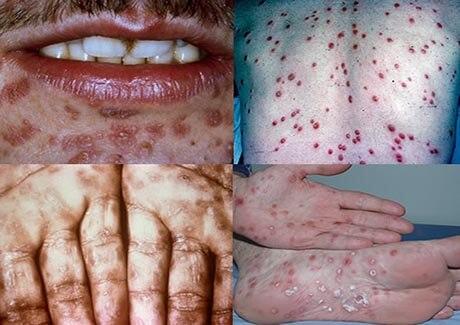Biểu hiện của bệnh lậu