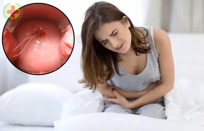 biểu hiện viêm âm đạo