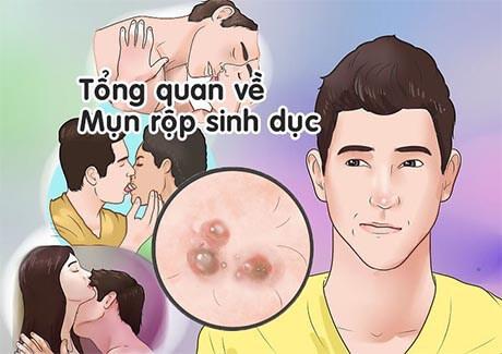Con đường lây nhiễm chủ yếu của bệnh