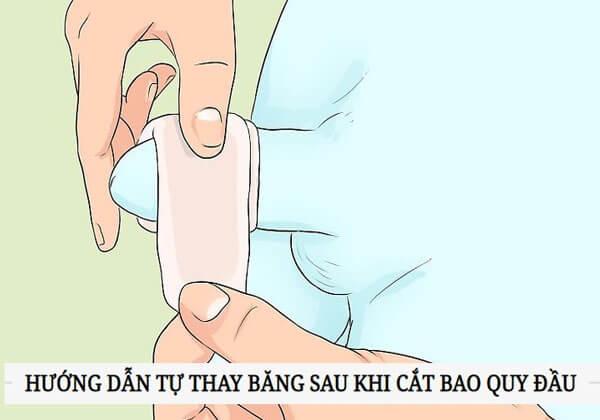 Cách thay băng sau khi cắt bao quy đầu