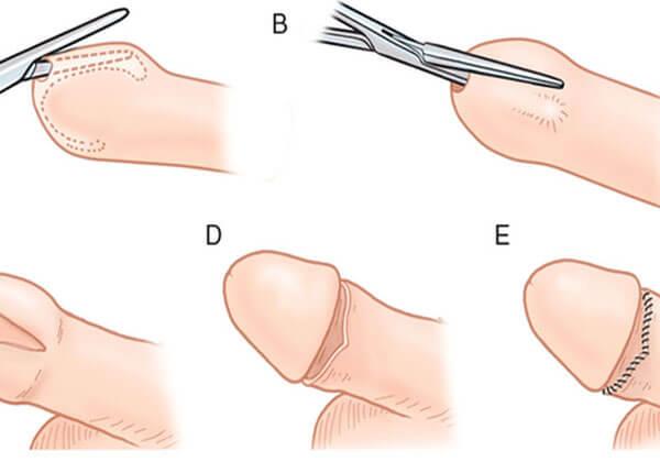 cắt bao quy đầu là gì? cắt bao quy đầu thế nào