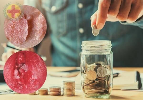 chi phí chữa bệnh hiện nay