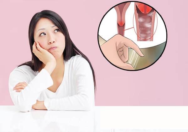 chi phí điều trị viêm âm đạo
