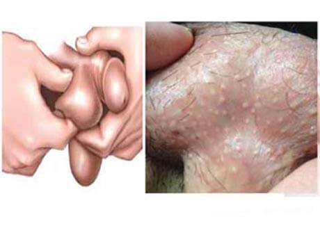ngứa bìu tinh hoàn là bệnh gì
