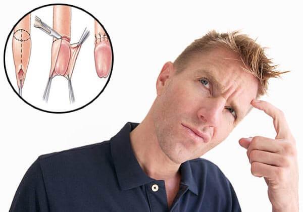 phẫu thuật cắt bao quy đầu là gì