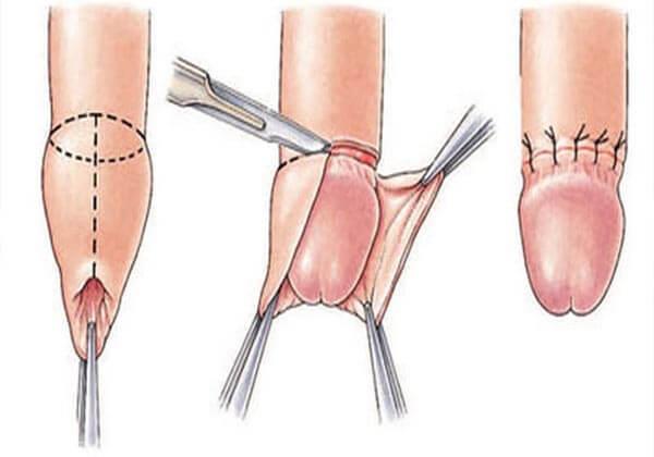 phương pháp cắt bao quy đầu hiện nay