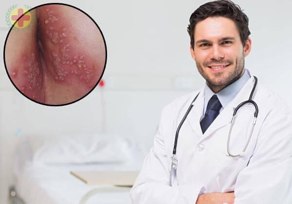 phương pháp điều trị mụn rộp sinh dục giai đoạn đầu