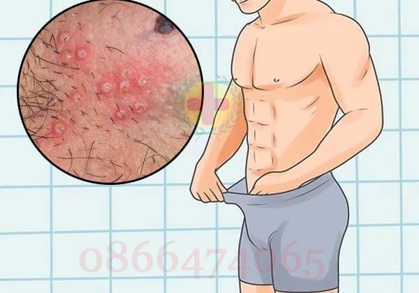 phương pháp điều trị mụn rộp sinh dục