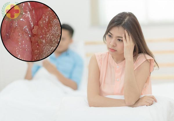 tác hại của bệnh sùi mào gà ở nữ
