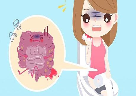 triệu chứng của bệnh trĩ ngoại