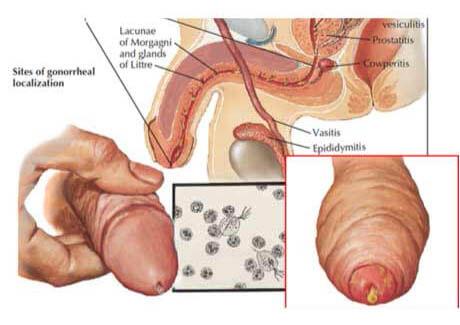 viêm niệu đạo ở nam giới la bệnh gì